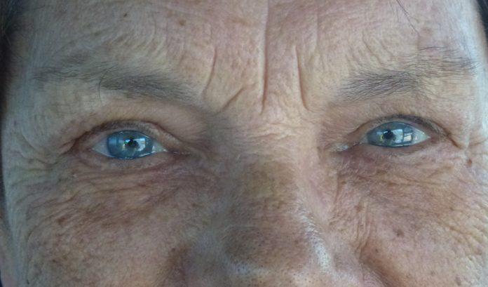 occhi anziani