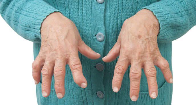Che effetti ha l'artrite reumatoide sul polso?