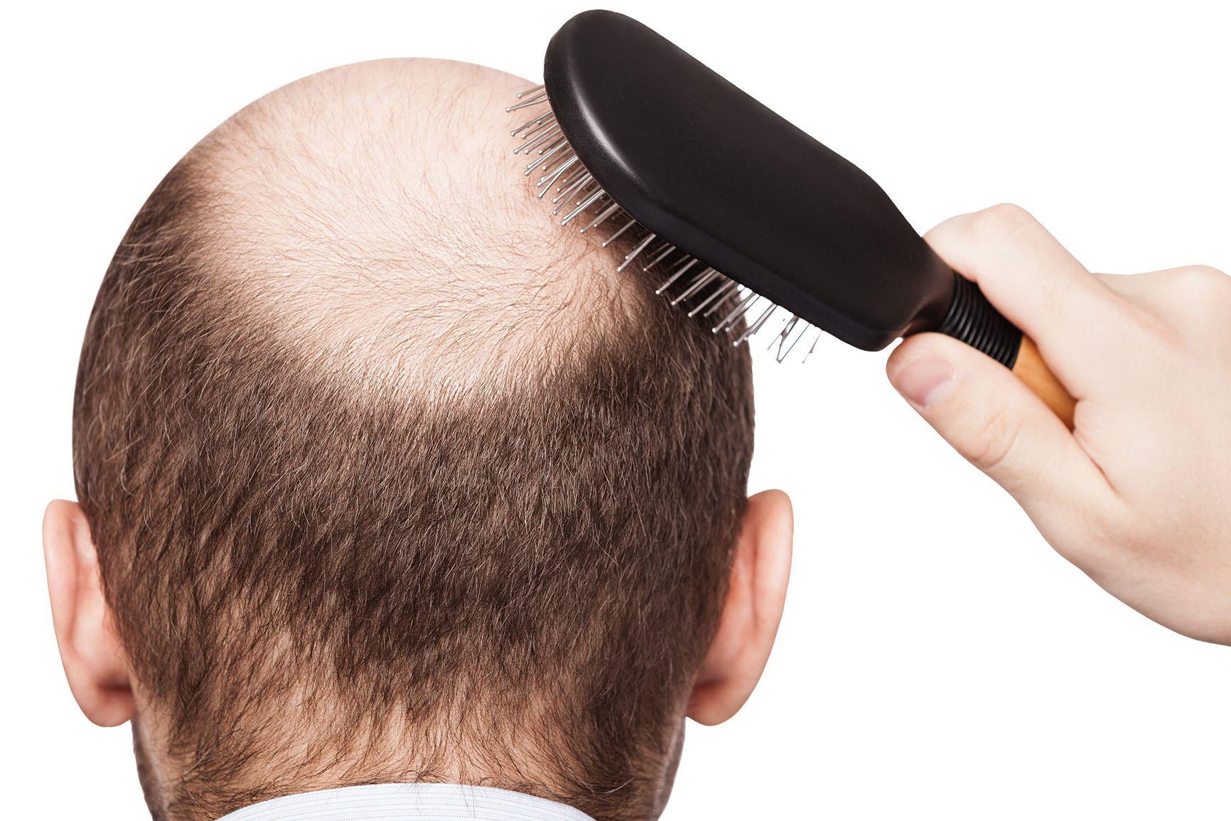 Due terzi degli uomini sono affetti da calvizie con il 40% che avverte una  notevole perdita di capelli dall età di 35 anni. Ci sono 70c3254ba03b
