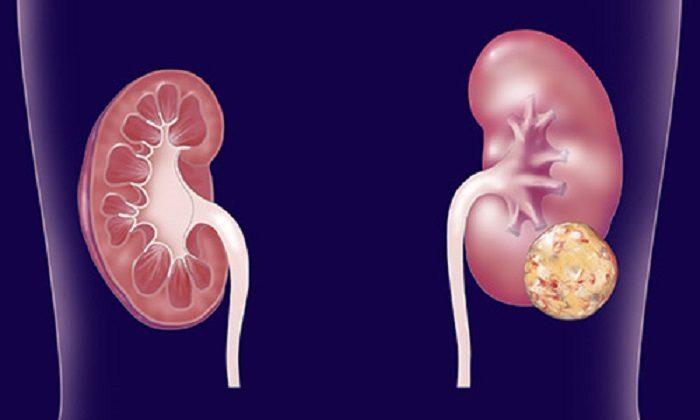 cancro-rene