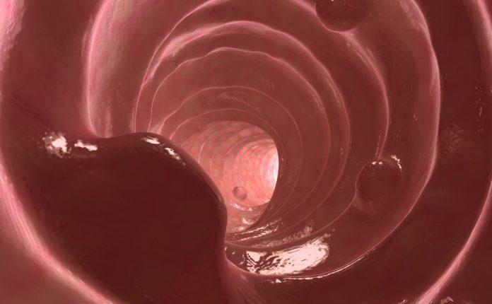 colon-polipo