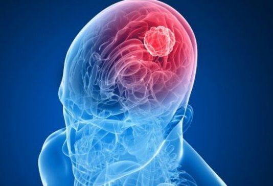 tumore-cervello