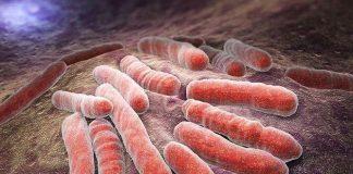setticemia