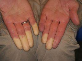sindrome-di-raynaud-