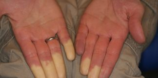 sindrome-di-raynaud-