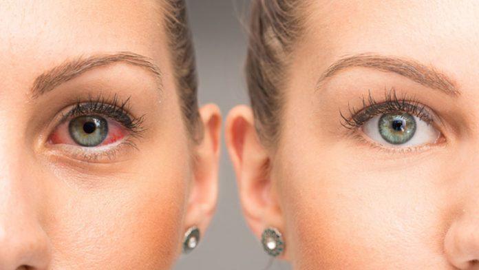 occhio-rosa-congiuntivite