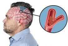 6 segni pericolosi di un ictus in arrivo che bisogna sapere