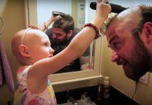 zach-alopecia