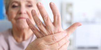I 5 primi segni di artrite reumatoide che non vanno trascurati