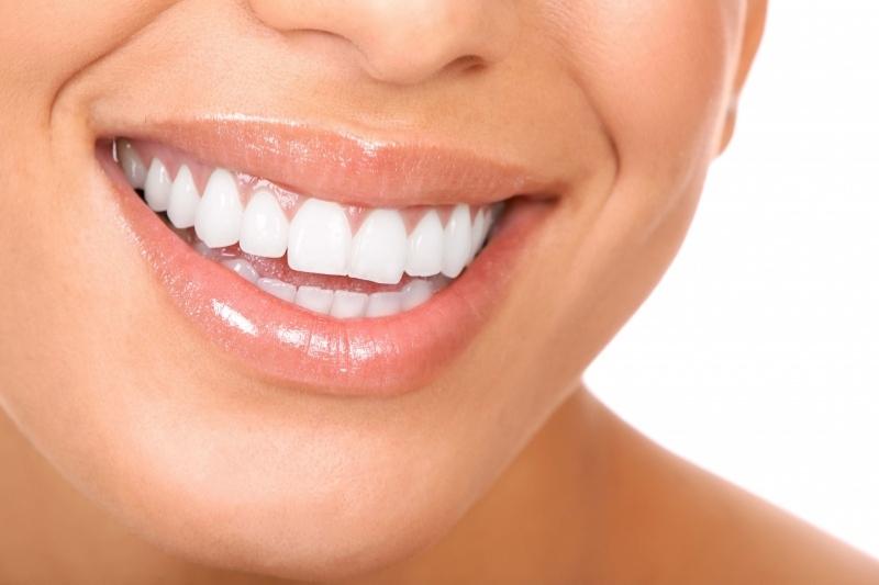 Quando ricorrere all implantologia dentalcoop busto arsizio