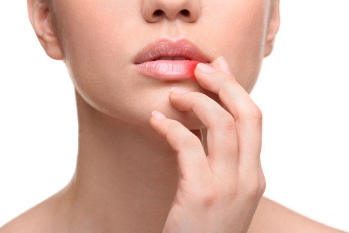 Herpes labiale: cos'è, sintomi e cure