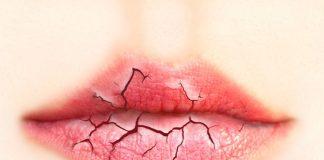 bocca-secca