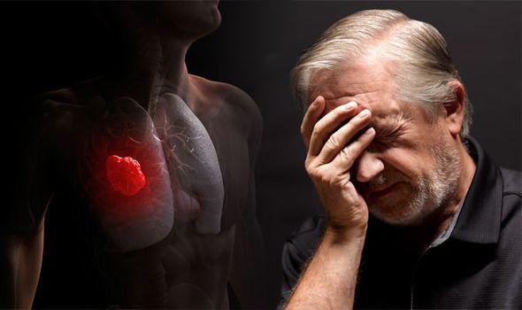 cancro-polmone