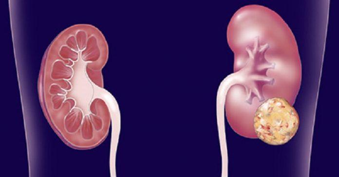 cancro-reni