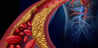 ipercoagulazione