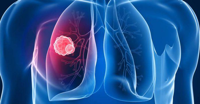 cancro polmoni sintomi