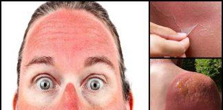 avvelenamento da sole