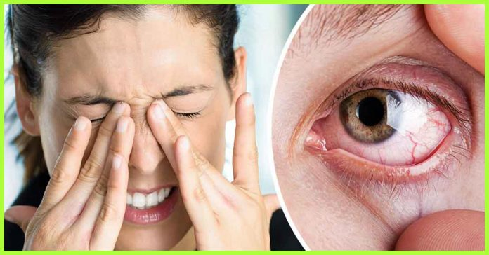sindrome occhio secco