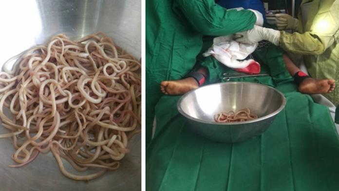 Bimbo di 4 anni aveva dozzine di vermi nell'intestino