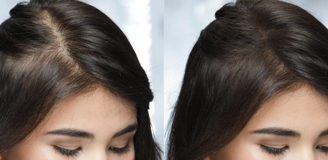 Perché le donne perdono i capelli? 7 segni spesso ignorati ...