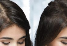 Perché le donne perdono i capelli? 7 segni spesso ignorati dell'alopecia