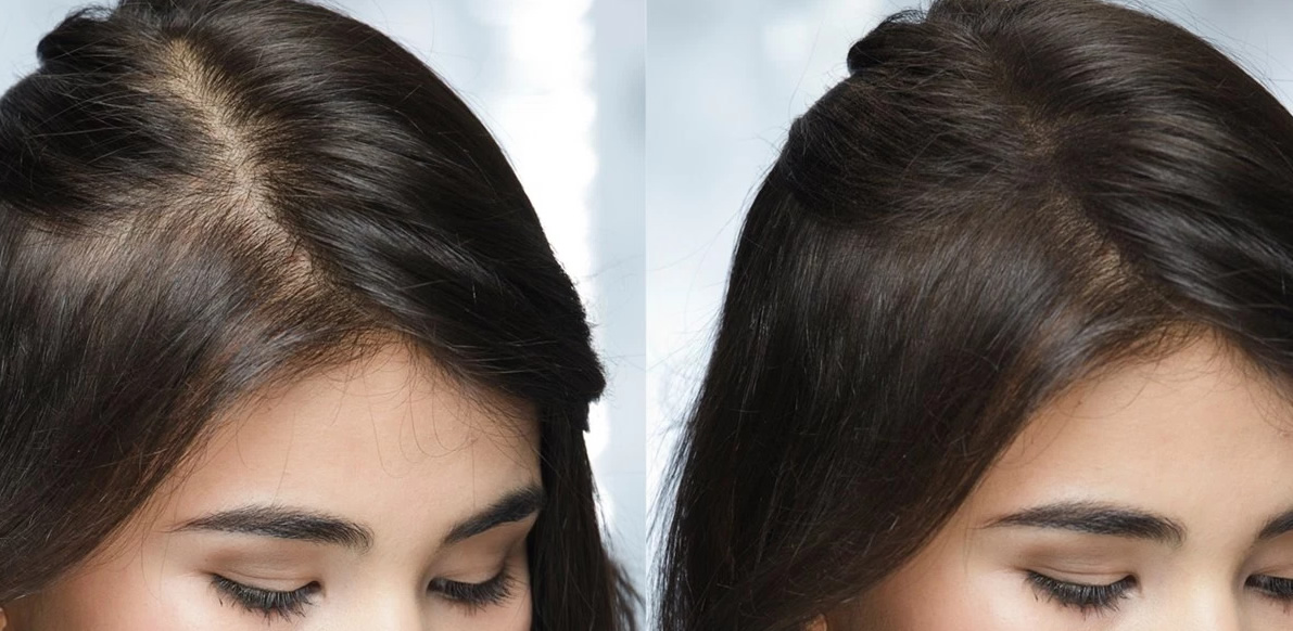 Alopecia androgenetica: come curarla con metodi naturali