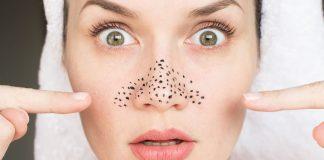 Cosa fare per rimuovere i pori nasali? Ecco qualche utile consiglio