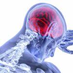 cancro al cervello mal di testa