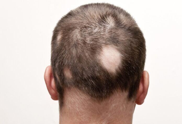 alopecia sintomi cause